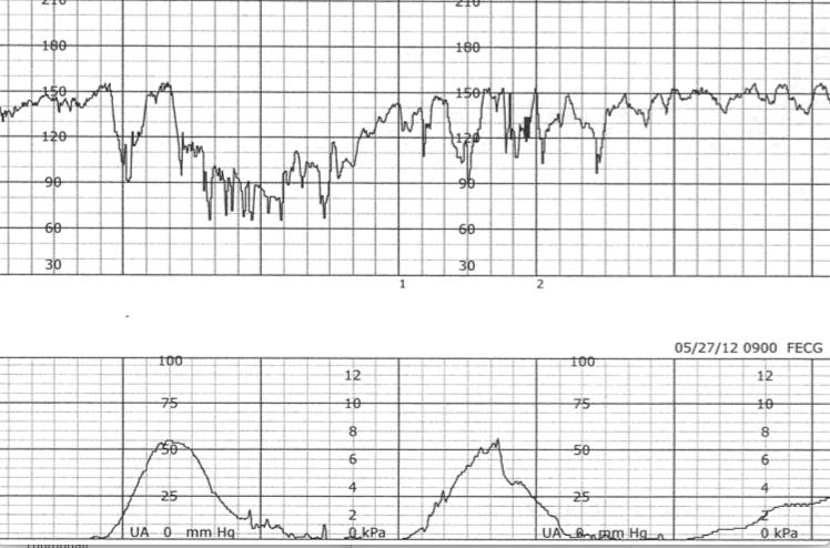 Fetal Monitoring: Late Decelerations