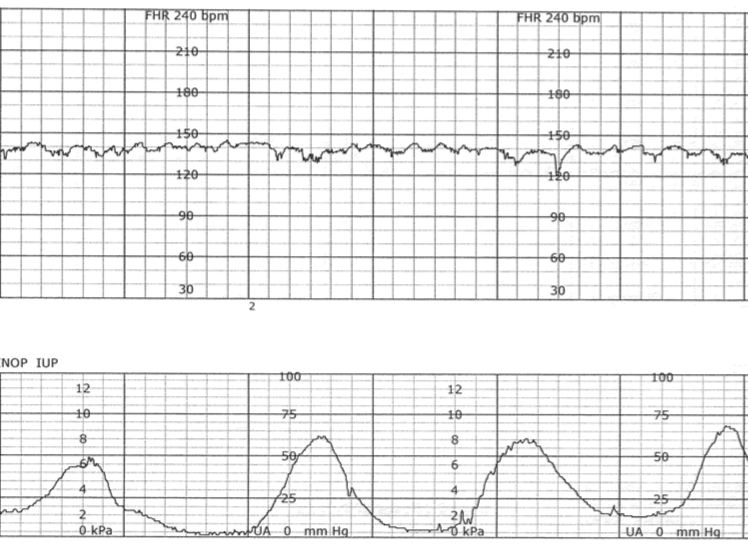 Fetal Monitoring: Normal Fetal Heart Rate