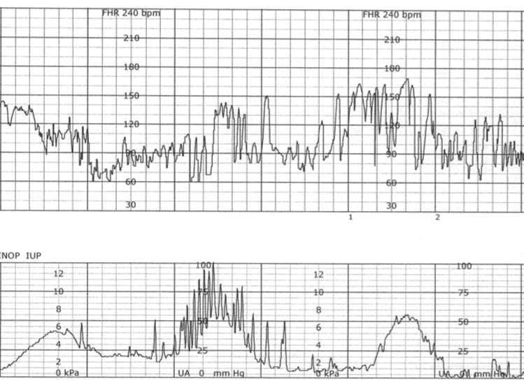 Fetal Monitoring: Prolonged Late Decelerations