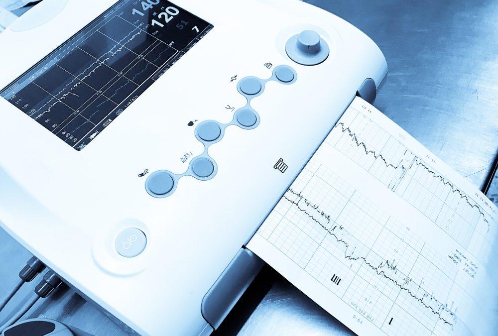 Fetal Monitoring: Uterine Contractions Measuring Intensity